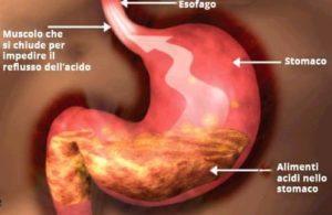 Alimenti acidi nello stomaco