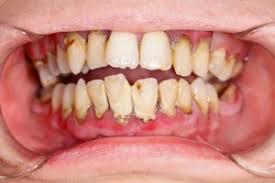 La scarsa igiene dentale può causare parodontiti