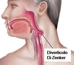Un diverticolo dell'esofago può essere causa di alitosi