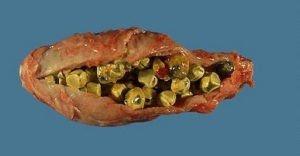 Calcoli biliari di colesterolo (radiotrasparenti)