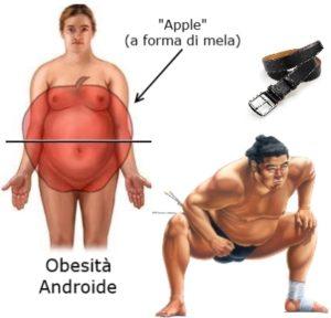 L'obesità peggiora il reflusso gastrico