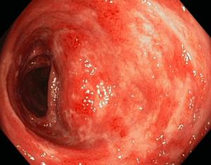 Quadro endoscopico di retto-colite ulcerativa