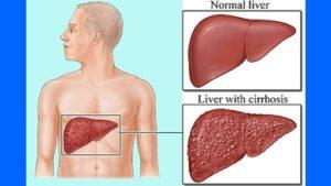 Fegato cirrotico e fegato sano a confronto
