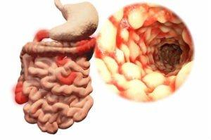 L'aspetto ad acciottolato della mucosa è caratteristico del Crohn