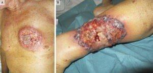 Pyoderma gangrenosum che può associarsi alle malattie infiammatorie croniche intestinali