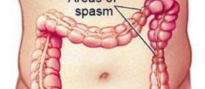 Sindrome del colon irritabile (meglio dire dell'intestino irritabile)