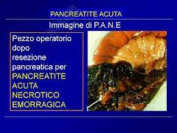 P.A.N.E. Pancreatite Acuta Necrotico Emorragica