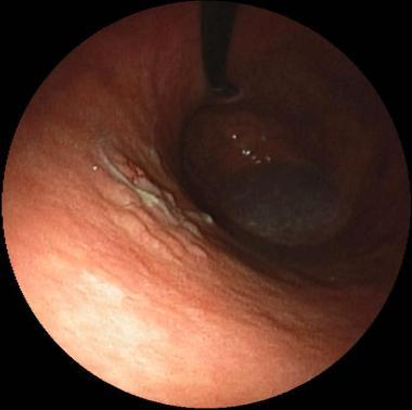 Lesione a tipo lateral spreading tumor