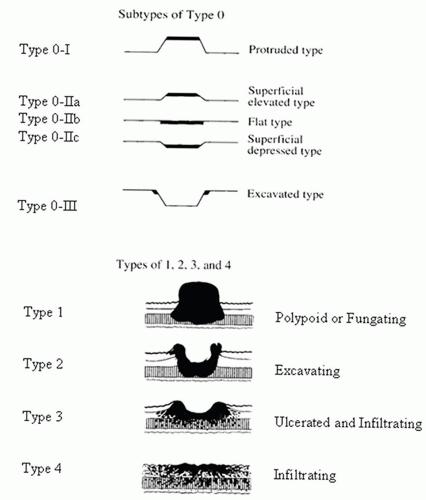 Le lesioni depresse del tipo 0-IIC