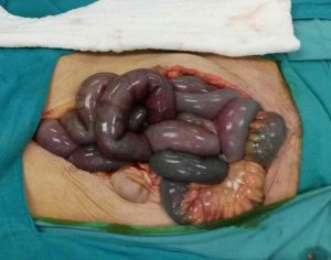 Visione chirurgica di aree infartuali del piccolo intestino