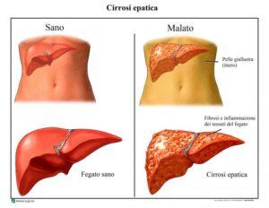 Evoluzione epatite in cirrosi